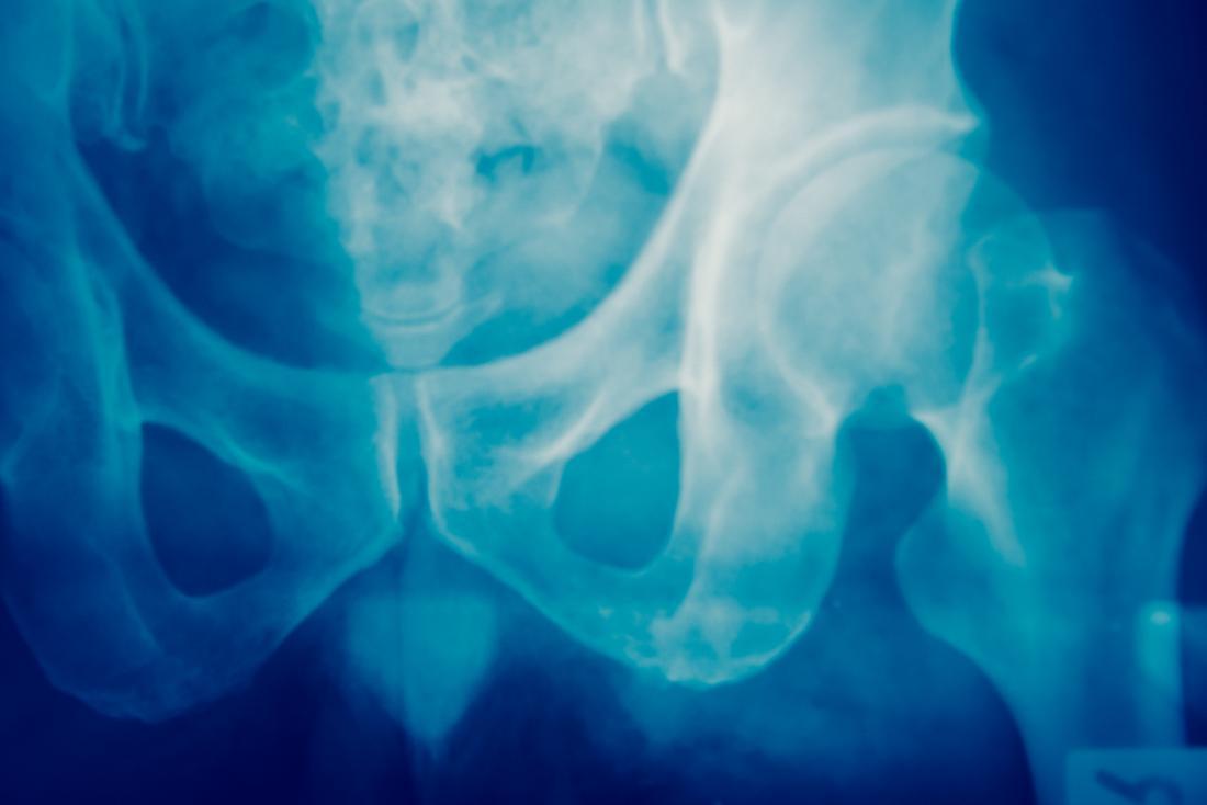 pelvis-x-ray